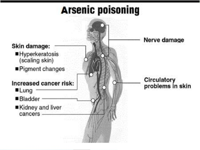 arsenic-poisoning-acute-subacute-and-chronic-30-638